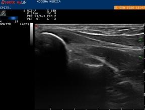 Proximal insertion of common flexor tendon: B-mode US scan