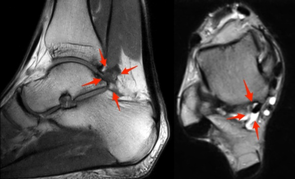 Posterior Ankle Impingement