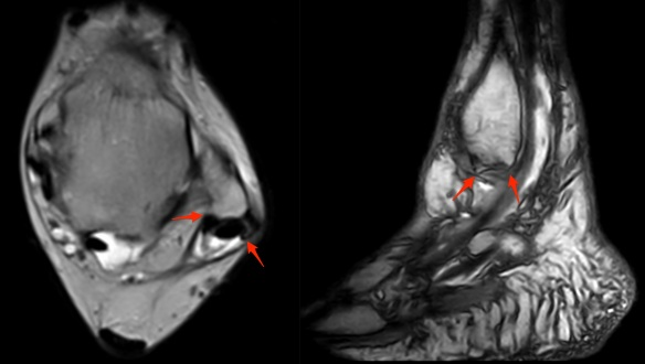 peroneal-tendon-rupture