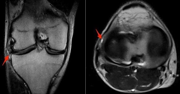 lateral-meniscus