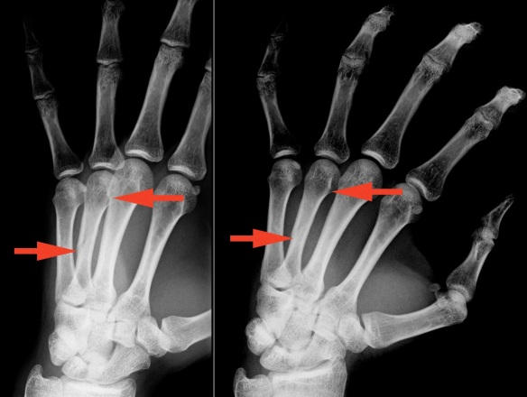4th metacarpal fracture