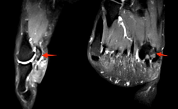 Medial Bipartite Sesamoid MRI